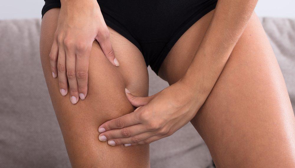 cellulite: quando fare dei trattamenti
