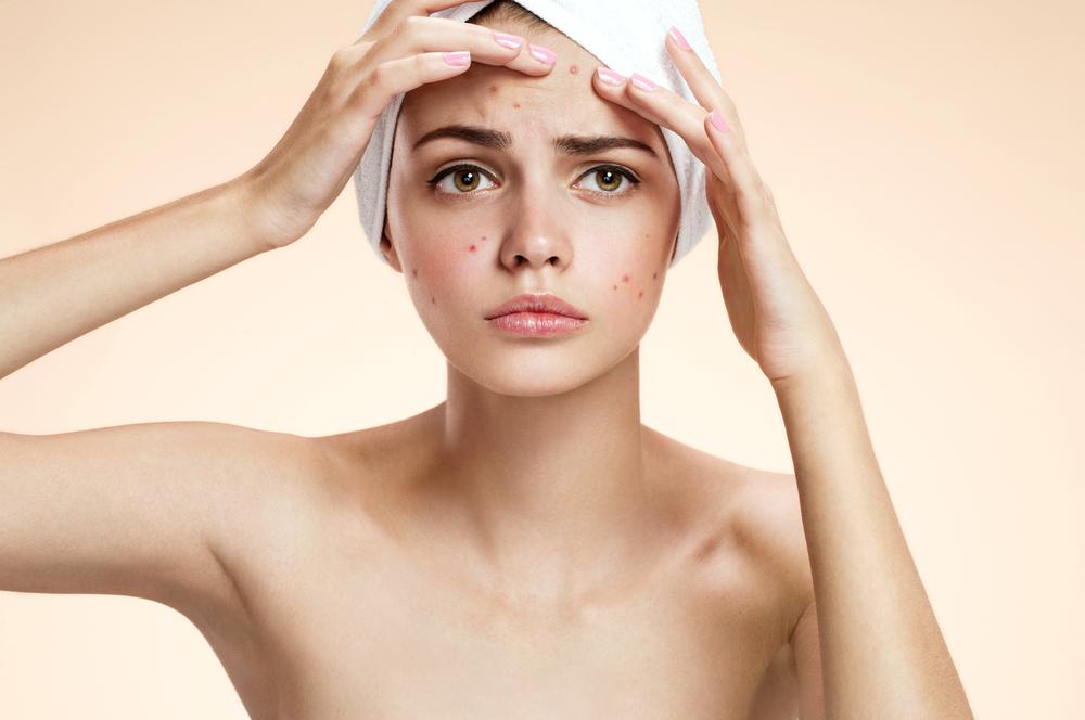 curare acne con omega 3