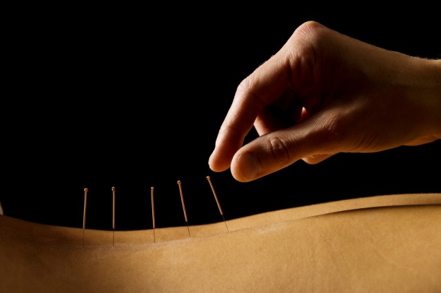 rimanere incinta grazie all'agopuntura