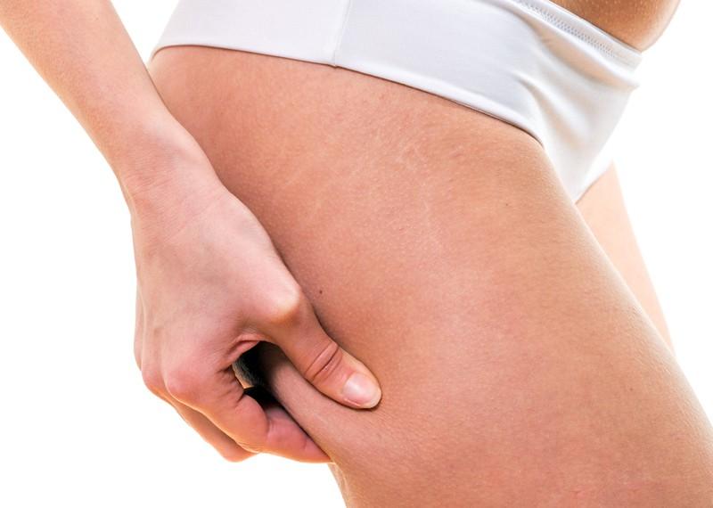 la tisana anti cellulite
