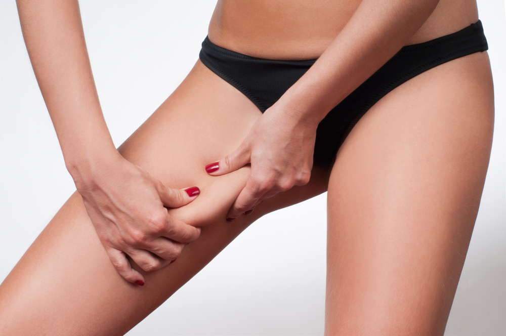 fanghi anti cellulite donne