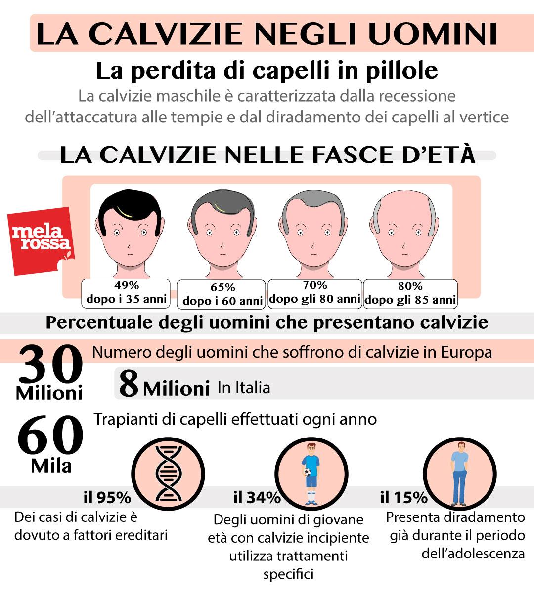 calvizie maschile: statistiche