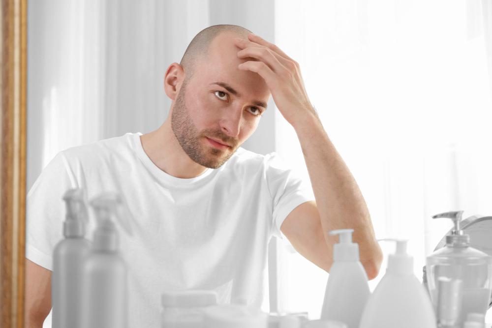 calvizie maschile: cosa fare per contrastarla anche a tavola