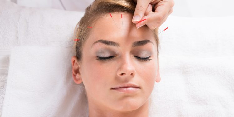 agopuntura per dimagrire