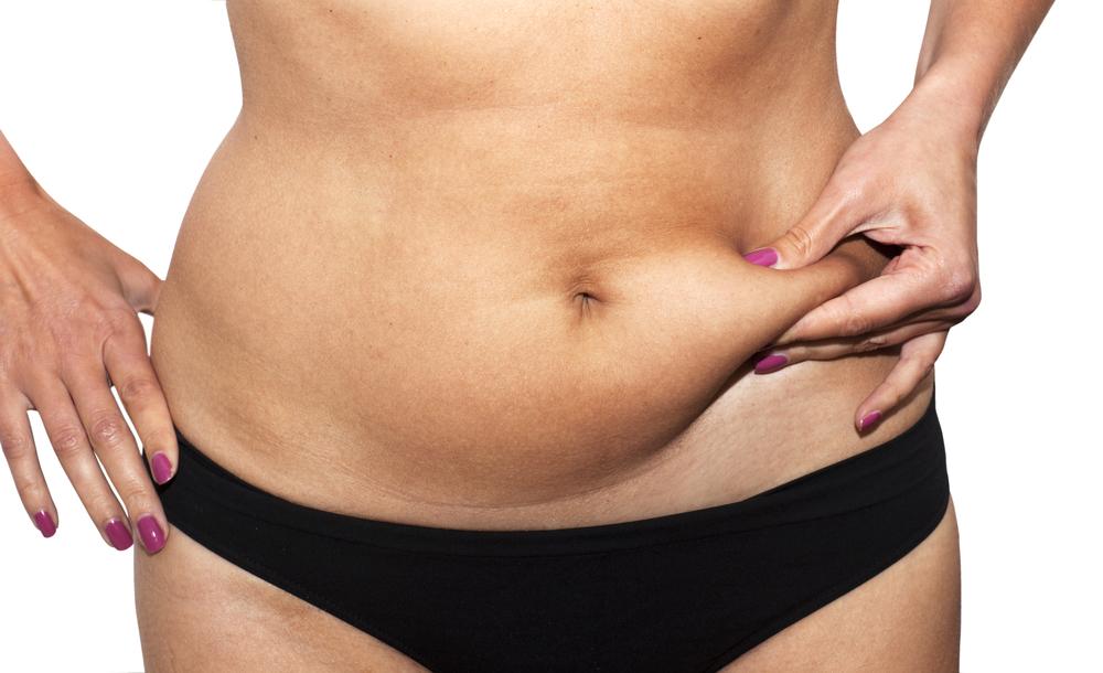 grasso sottocutaneo: rimedi e consigli per eliminarlo