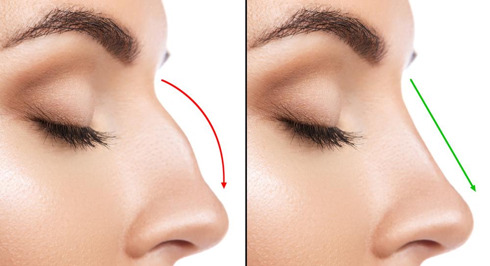rinofiller rimodellare il naso senza bisturi Claudia Manari