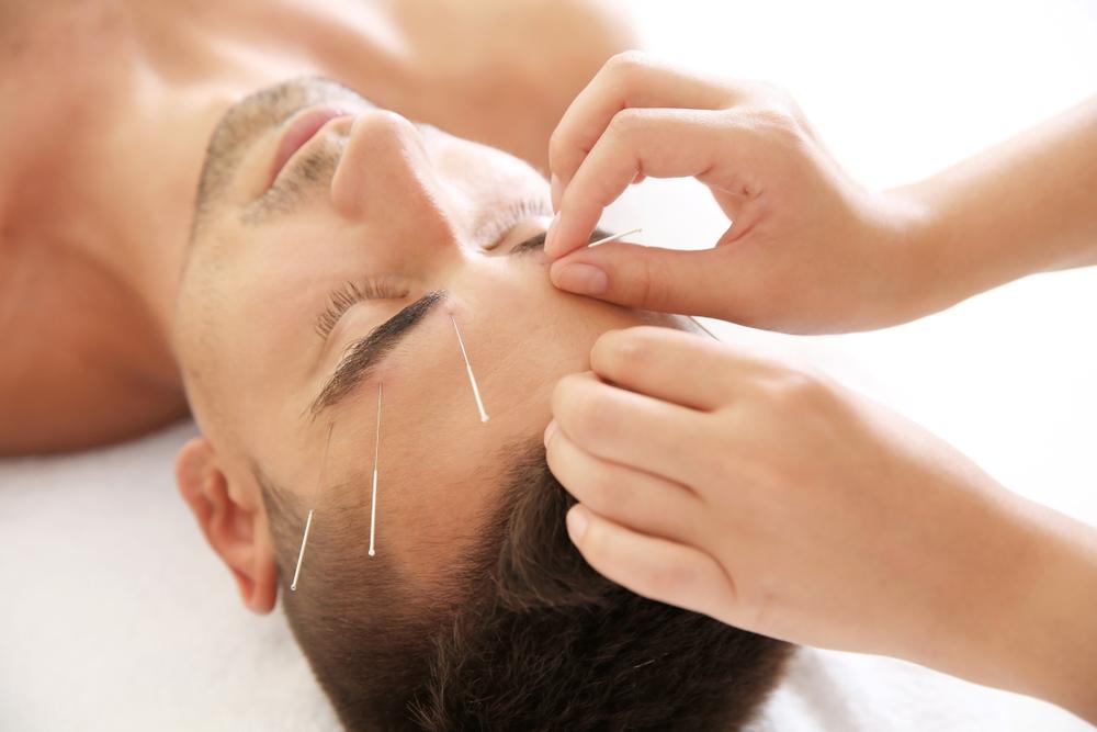 agopuntura per dimagrire: funziona