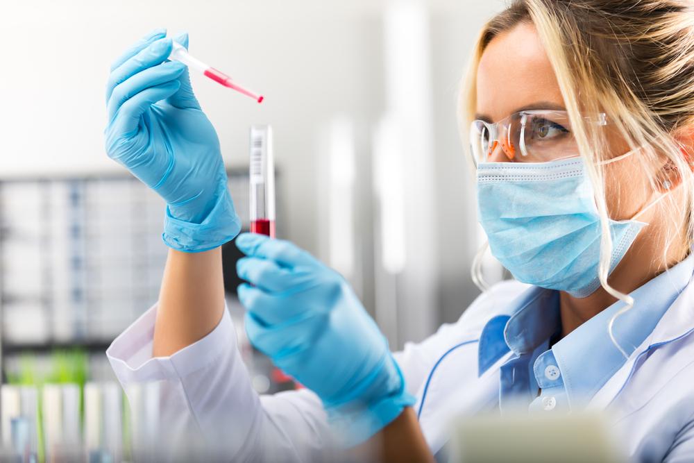 test per misurare lo stress ossidativo