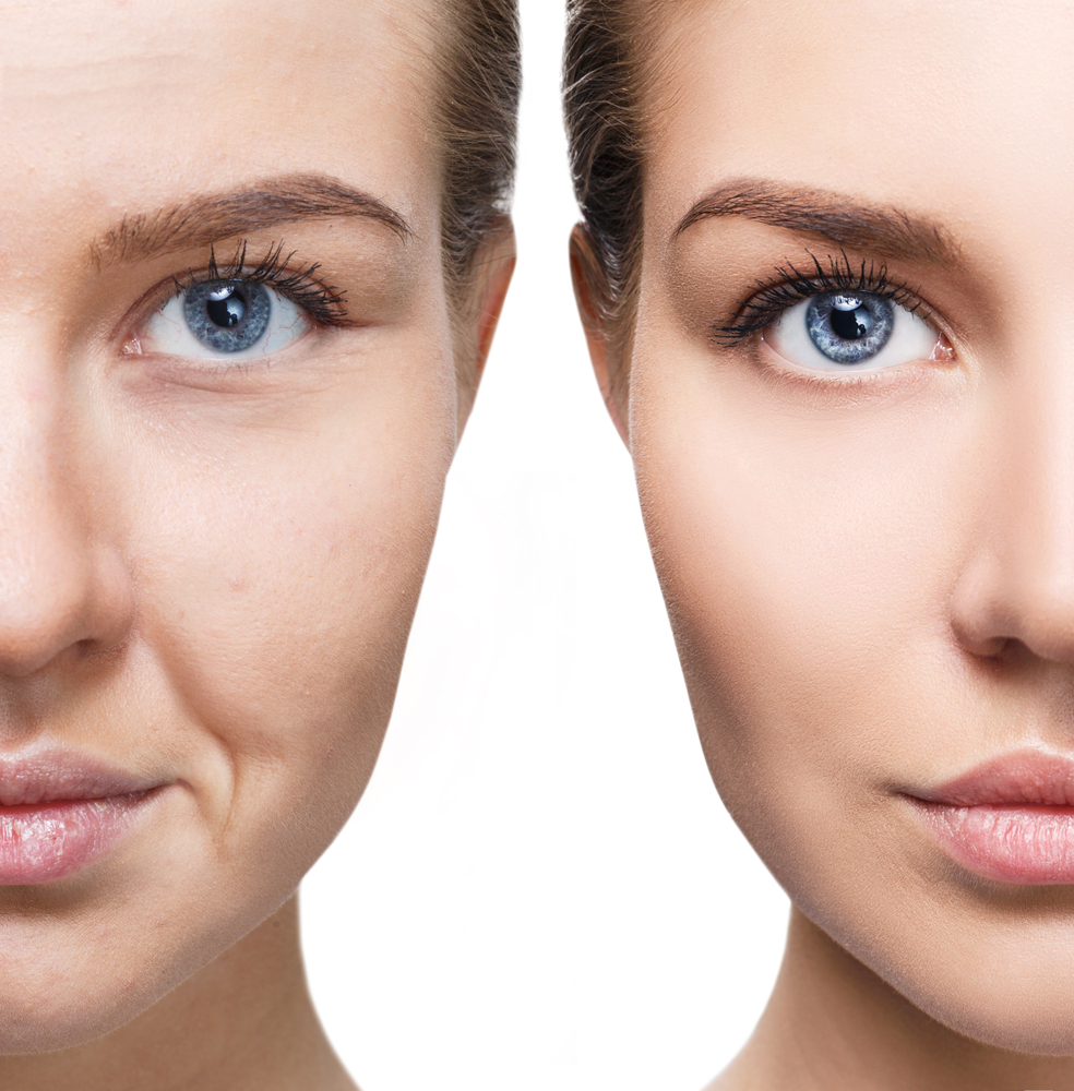 ginnastica facciale: i benefici