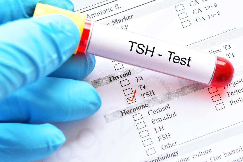 TSH test