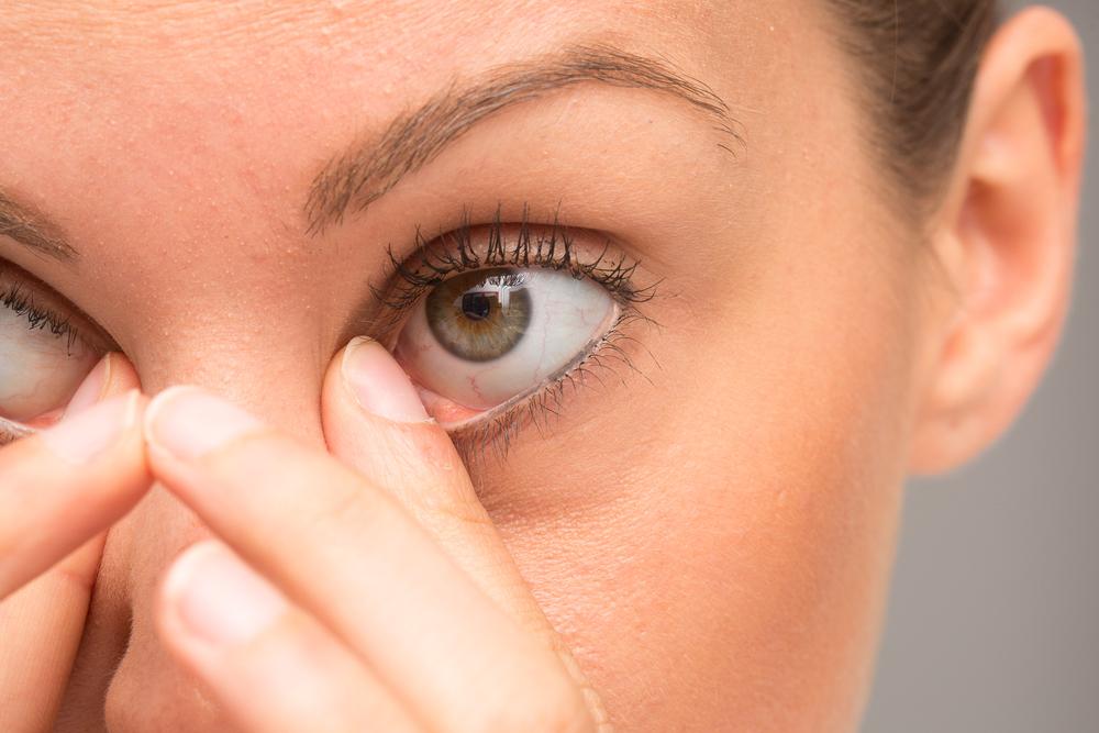 orzaiolo: i sintomi