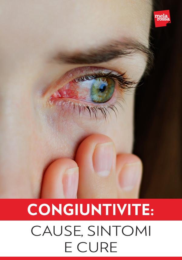 La congiuntivite è un'infiammazione della congiuntiva, il tessuto che ricopre la superficie interna delle palpebre e quella anteriore del bulbo oculare. La congiuntiva svolge la funzione di difendere l'occhio dai microrganismi e di proteggerlo da sostanze estranee: in condizioni di normalità viene lubrificata dalla secrezione emessa dalle ghiandole lacrimali. Melarossa.it #dietamelarossa