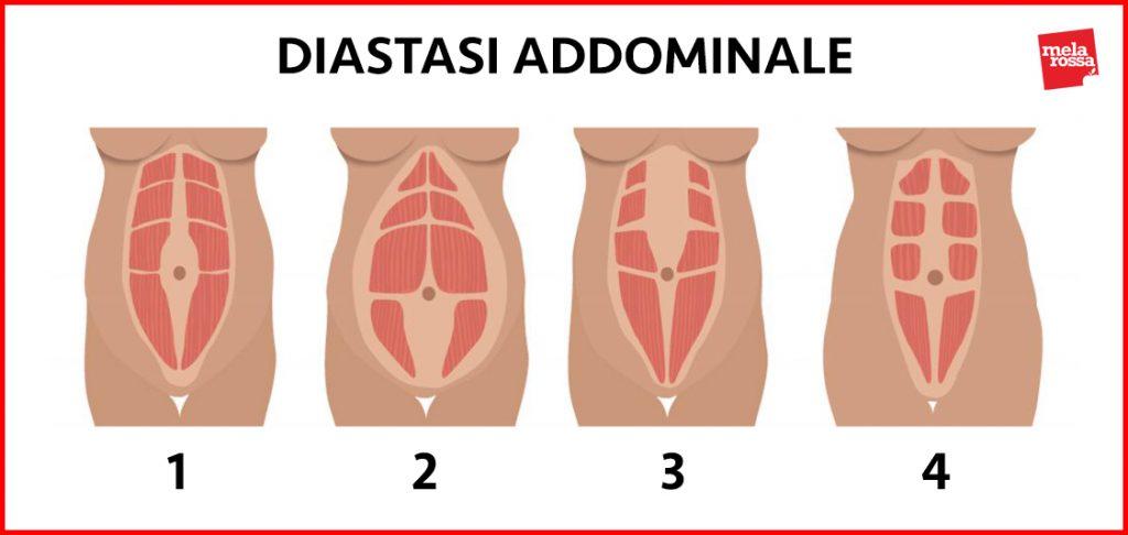 diastasi addominale: classificazione