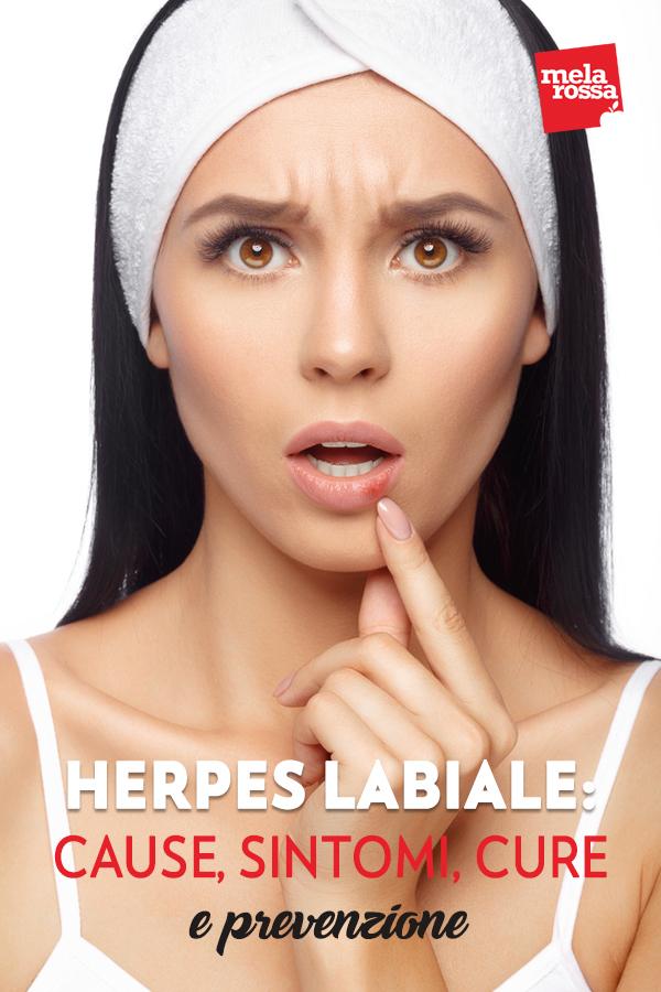 """Herpes labiale: chi ne soffre lo sa bene… quando il labbro tira, quando compare quel rossore e si avverte un leggero formicolio non c'è scampo e nel giro di poche ore appaiono le tipiche vescicole dell'herpes labiale o """"febbre delle labbra"""". L'importante è riconoscere il problema ai primi sintomi e cercare di ridurre al minimo il fastidio con alcuni prodotti specifici. D'altra parte l'herpes labiale è un problema molto comune, di sicuro antiestetico e fastidioso, ma non grave: nel mondo ne soffrono ben 3,7 miliardi di persone sotto i 50 anni. Melarossa.it #dietamelarossa"""