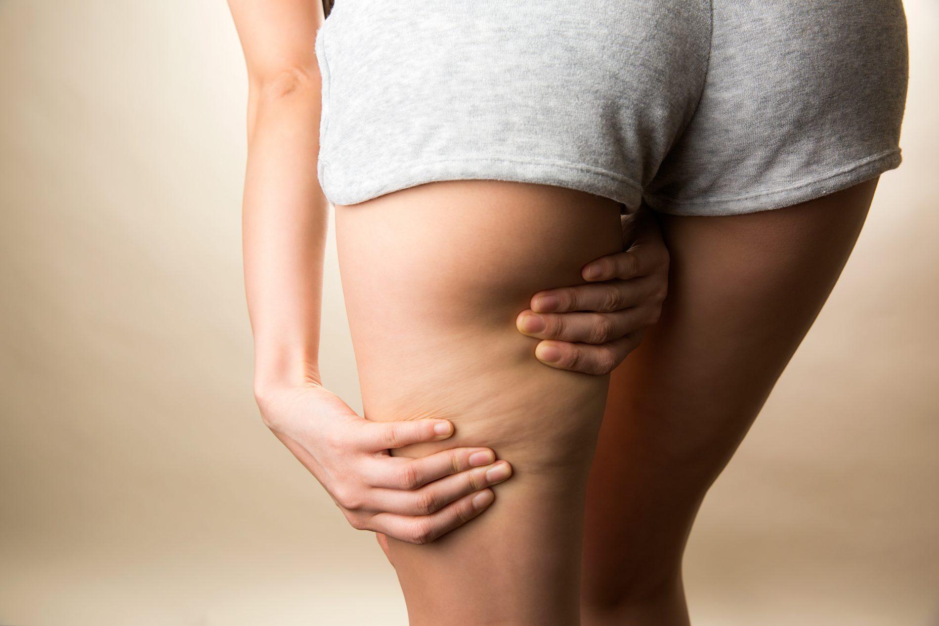 cellulite: cos'è, cause e rimedi