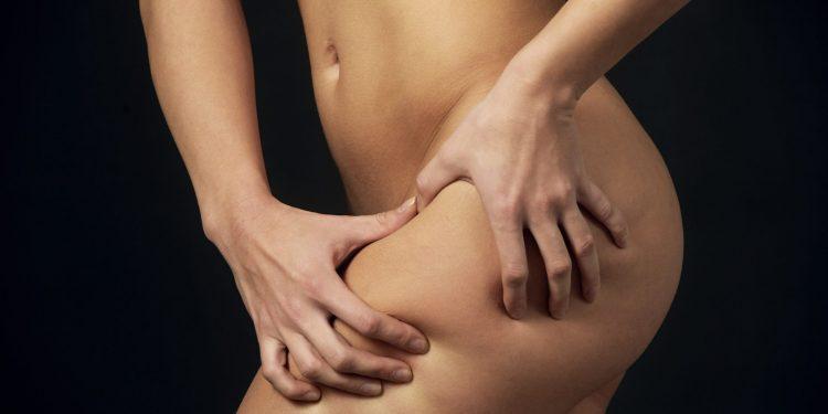 come combattere la cellulite: dieta, sport, trattamenti e creme