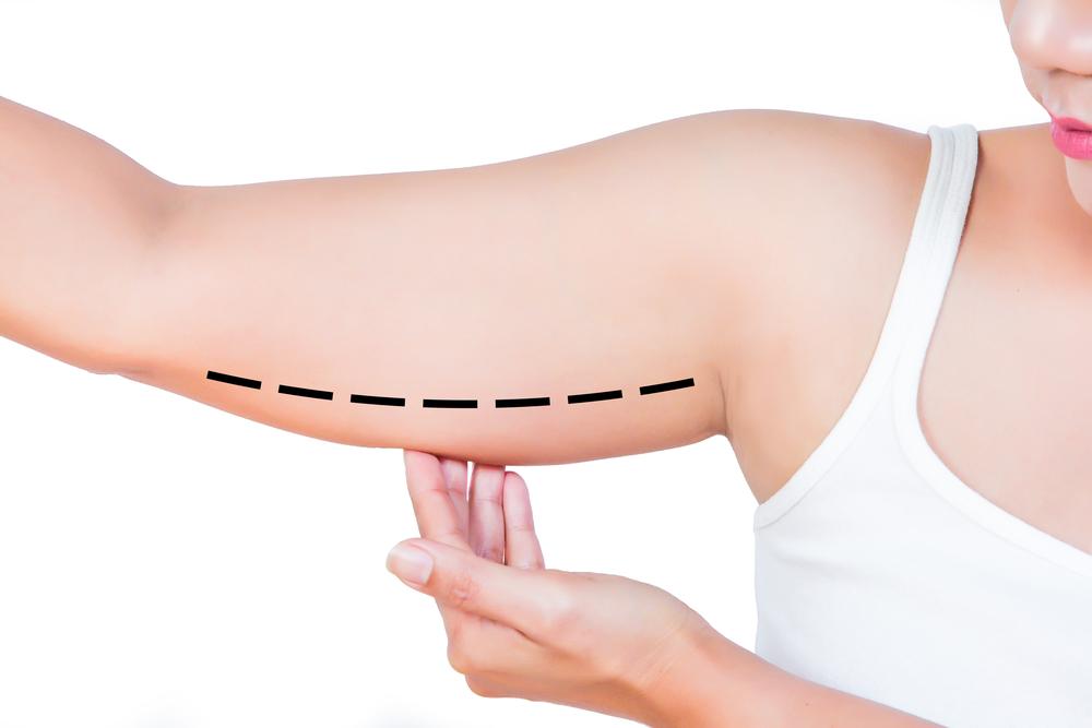 esercizi per le braccia e trattamenti estetici