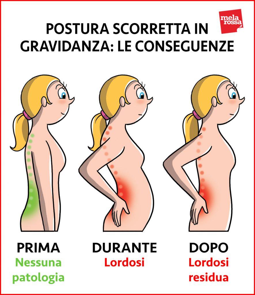 modifiche del corpo materno: postura e mal di schiena