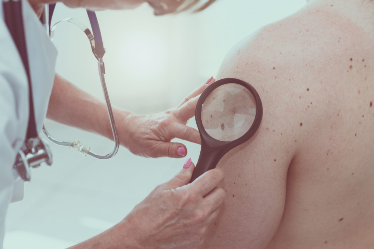 psoriasi: diagnosi