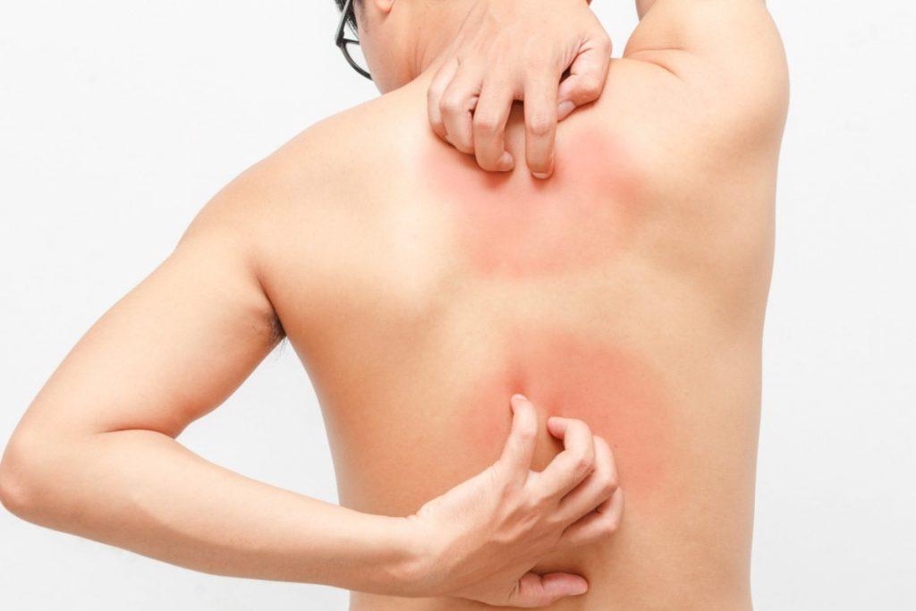 psoriasi: sintomi