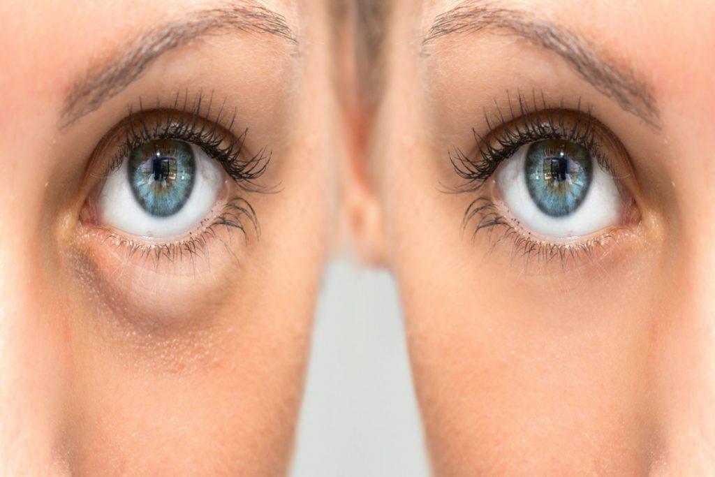 Usi alternativi: trattamenti di bellezza con la Tecar
