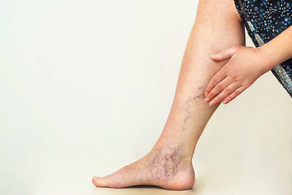 gambe gonfie: cause