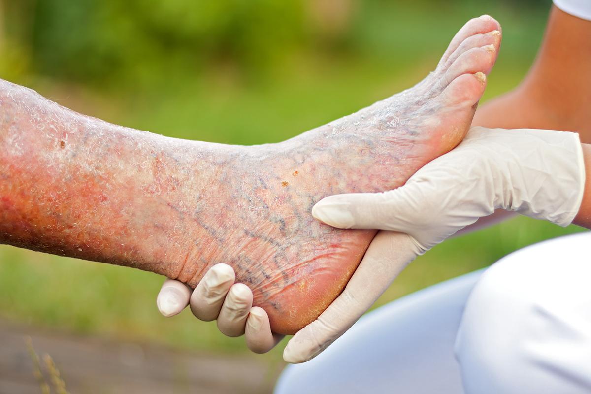 gambe gonfie: malattie cause