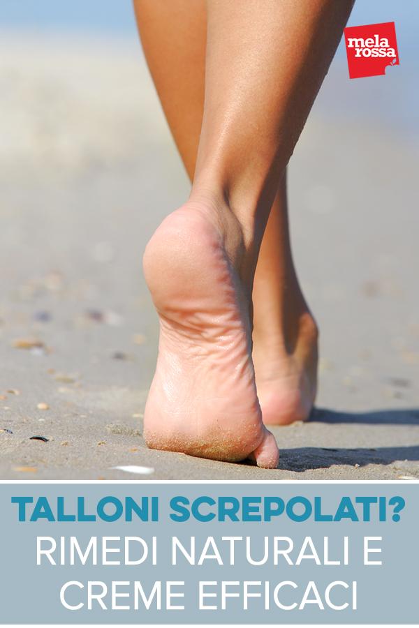 talloni-screpolati