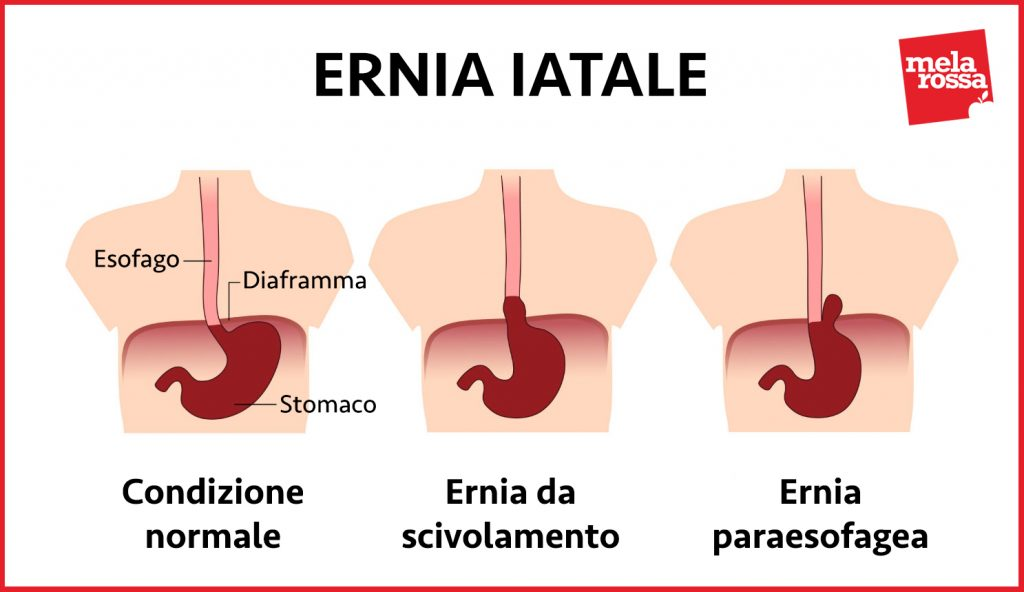 ernia-iatale-2
