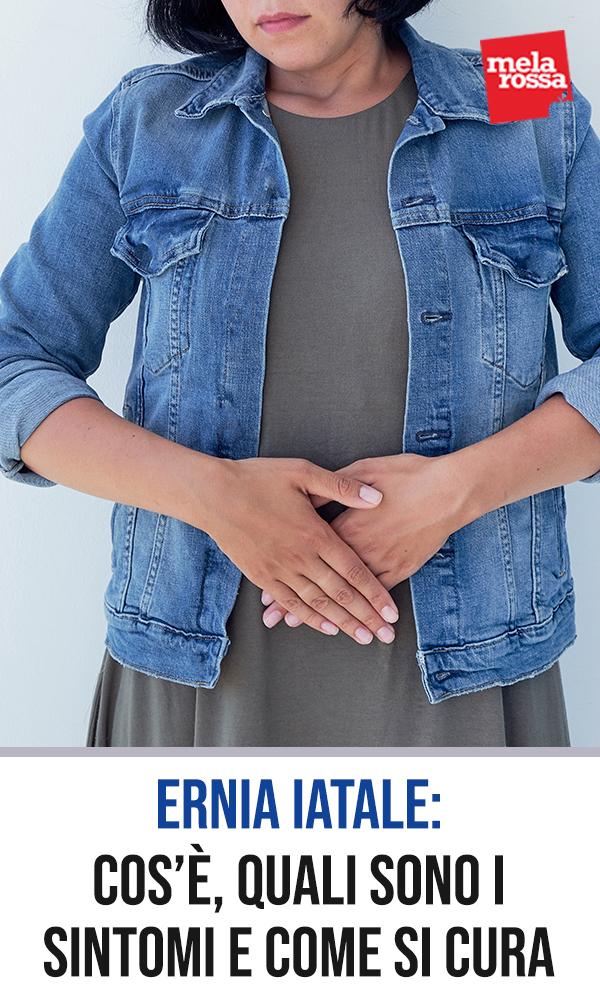 ernia-iatale