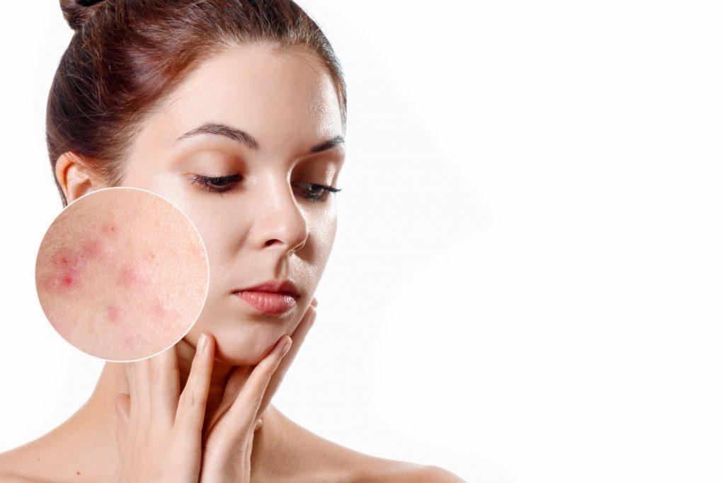 acne-viso