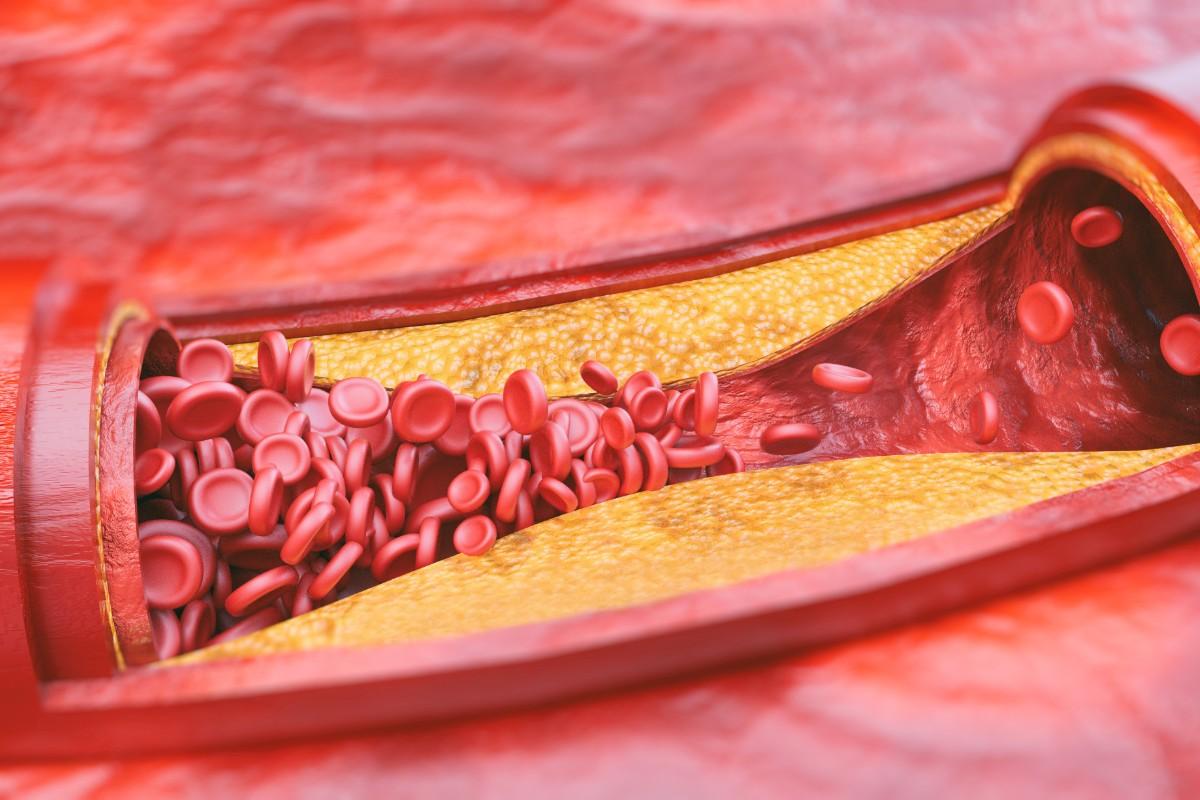 arteria patologie