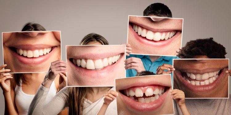 Denti: se sono in salute, meno rischi per la salute del cuore