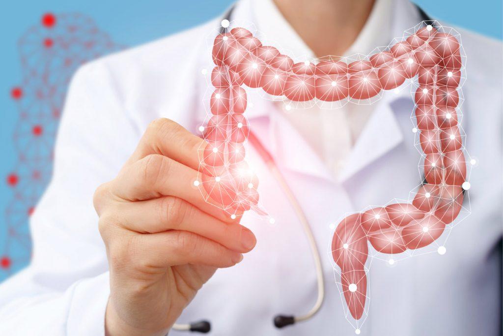 Tumore del colon-retto: cause, sintomi, prevenzione, ruolo dell'alimentazione