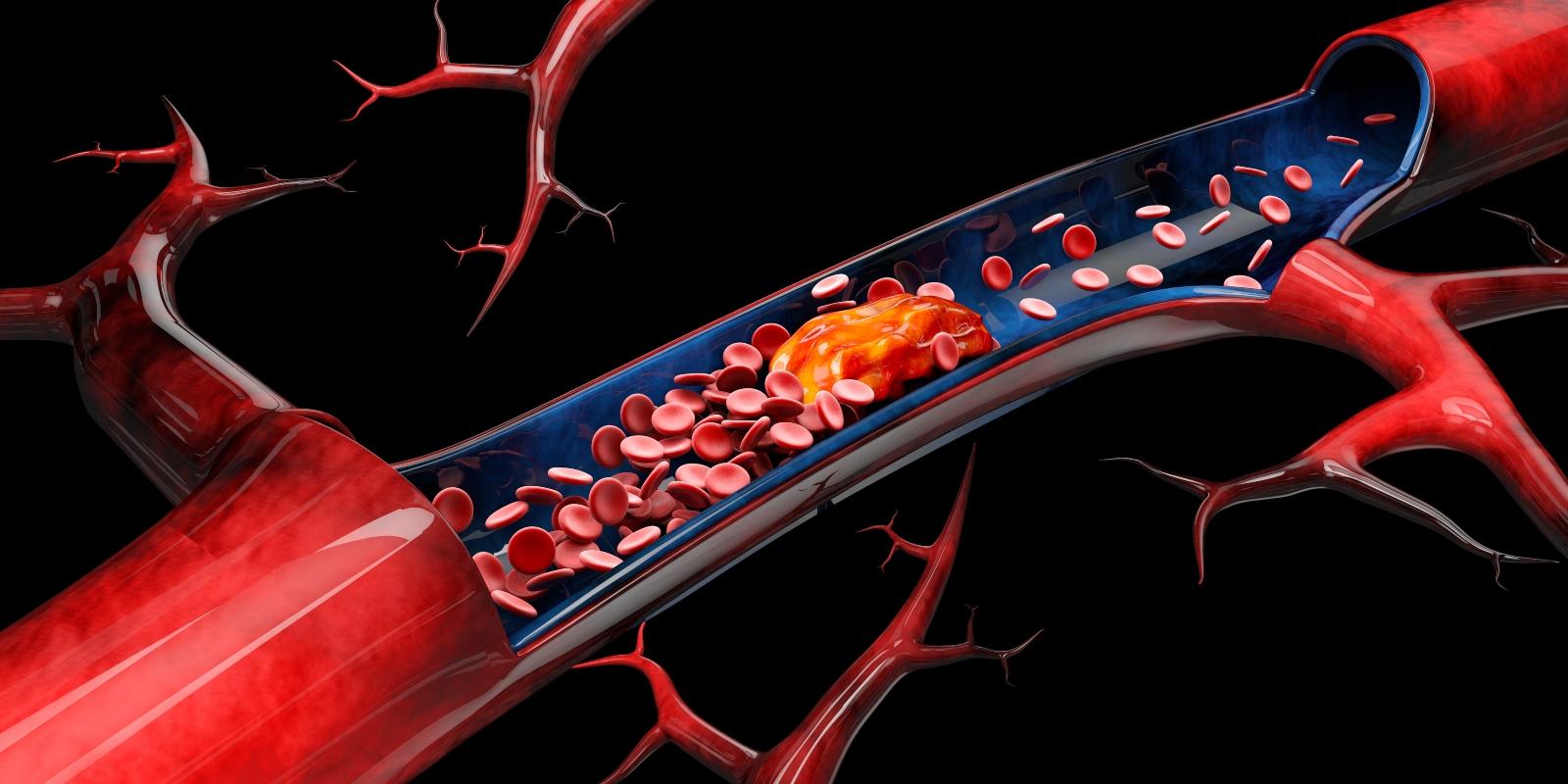 cause della sclerosi multipla