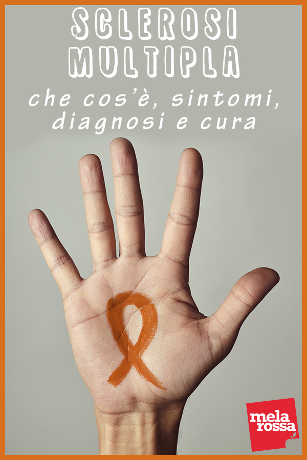 sclerosi multipla: che cos'è. sintomi, cause e cura