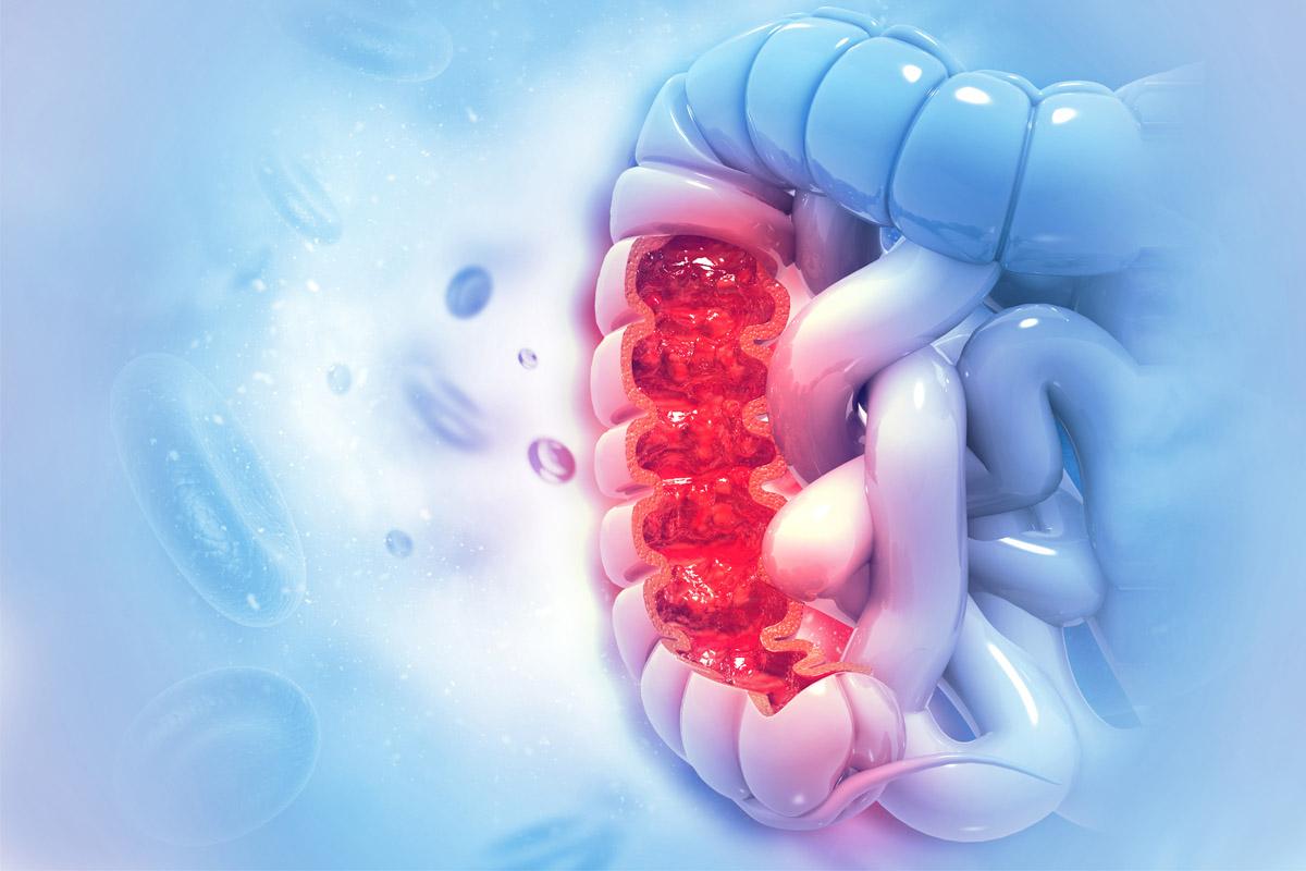 cancro colon: scoperto meccanismo sopravvivenza cellule