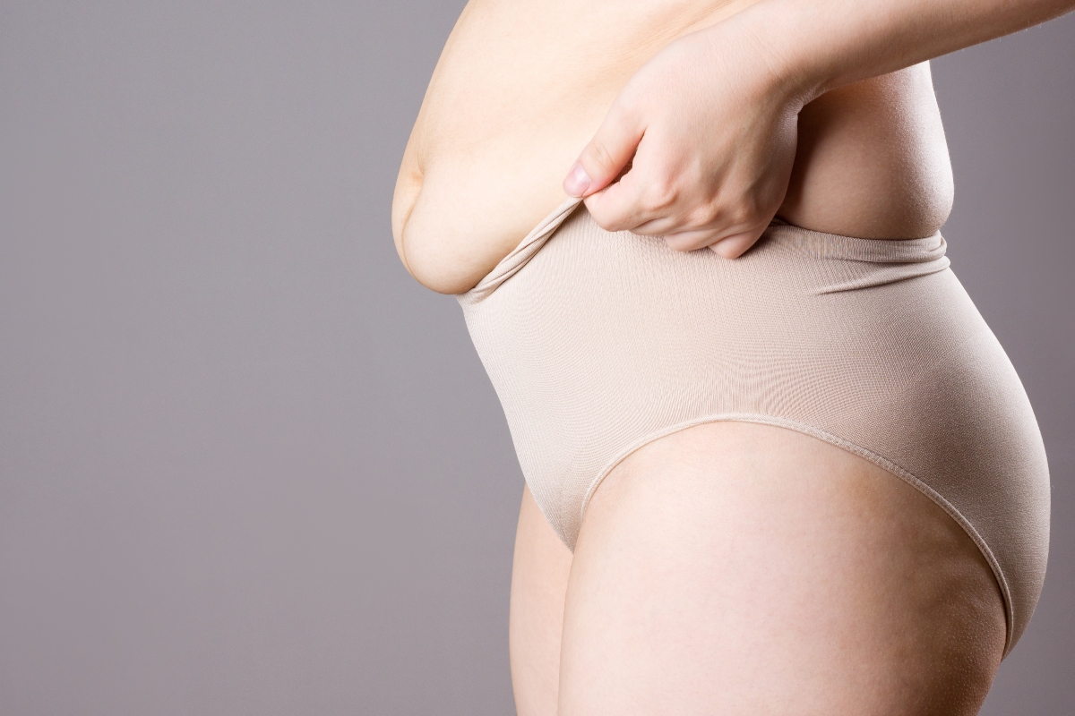 sclerosi multipla: sovrappeso