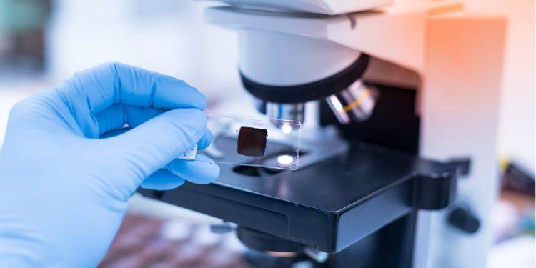 Tumore del colon, scoperte cellule dormienti che resistono alle cure. Passo avanti verso cure più efficaci