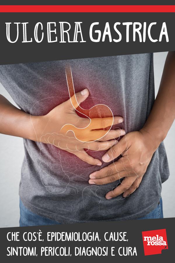 ulcera gastrica: che cos'è, sintomi, cause, diagnosi e cura
