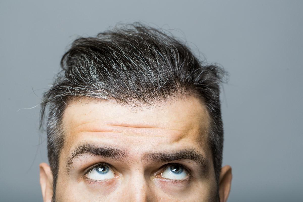stress accelera capelli bianchi