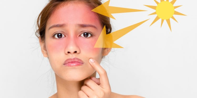 come prevenire eritema solare