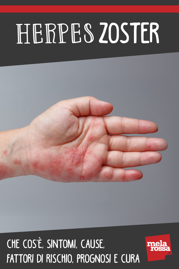 herpes zoster: cos'è, cause, sintomi e cure