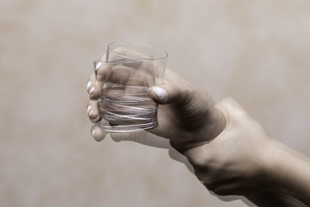 Possibile alleviare gli effetti collaterali della L-Dopa per la cura del Parkinson