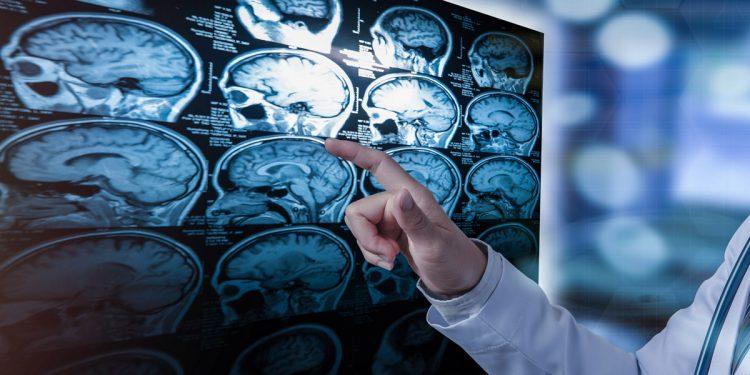 Sclerosi multipla: scoperta nuova molecola in grado di controllarla. Lo studio dell'Università di Perugia