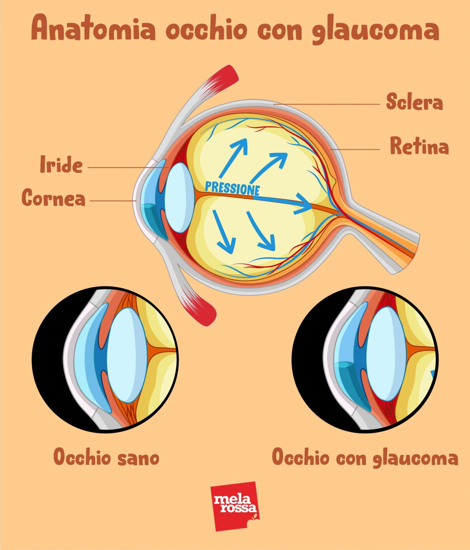 anatomia del glaucoma