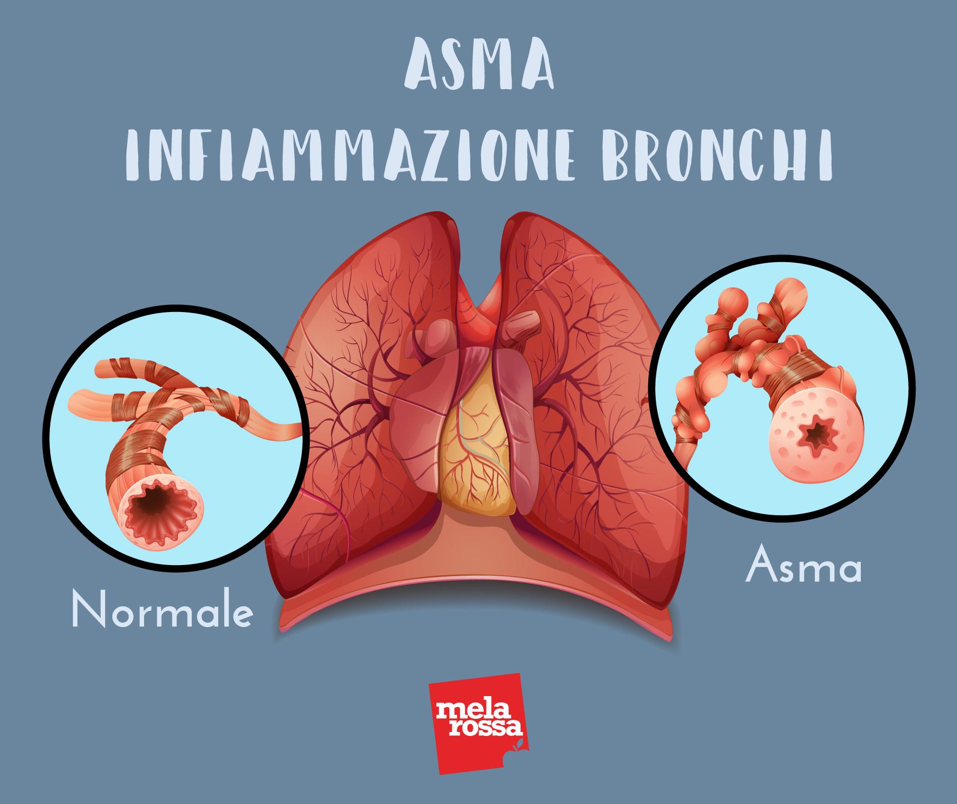 asma: infiammazione bronchi