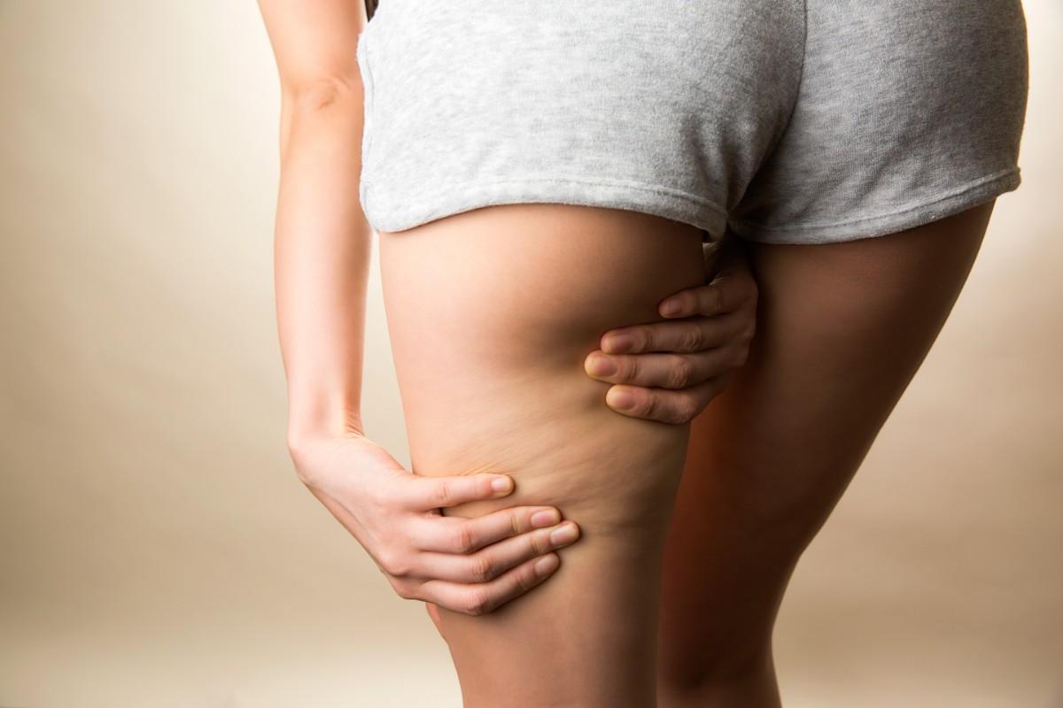 trattamenti beauty fai da te: massaggio anticellulite