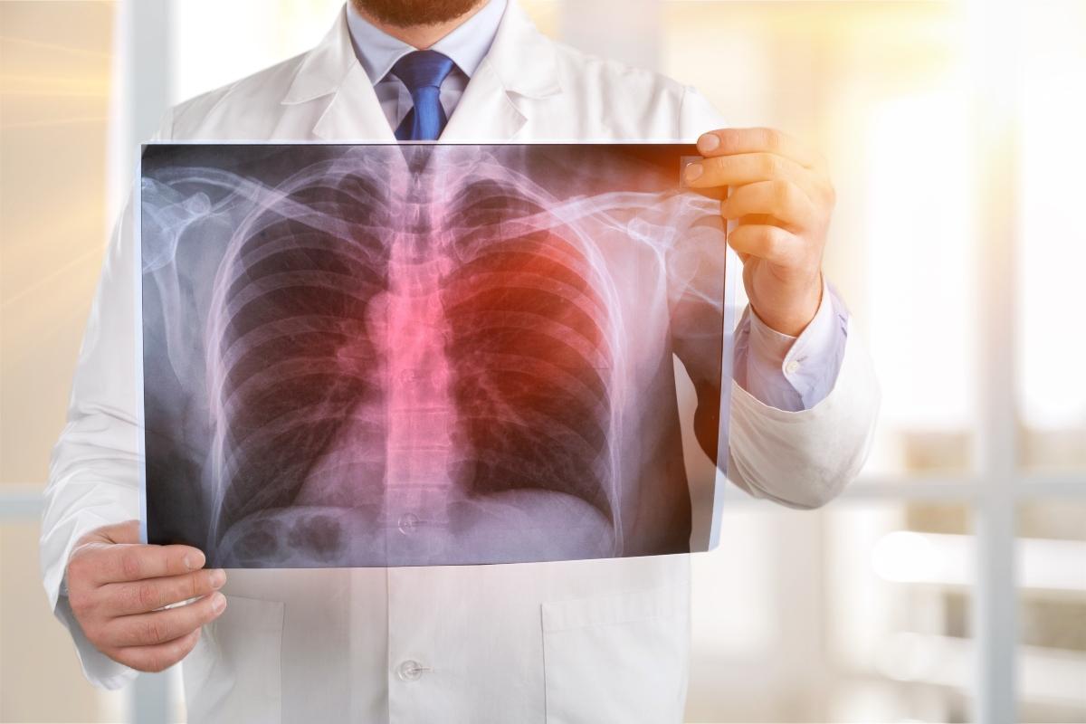 polmonite: diagnosi