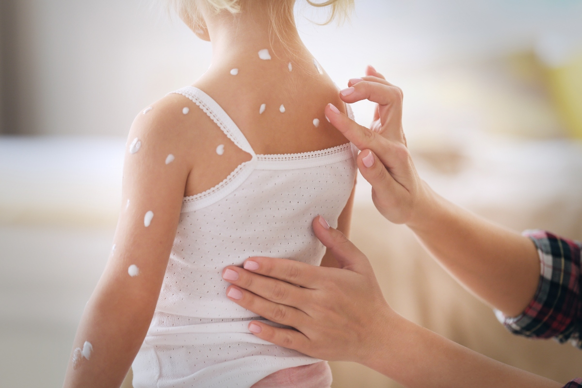 varicella: cura